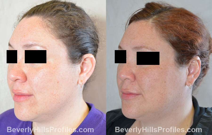 photos female patient before and after Otoplasty Procedures - left oblique view