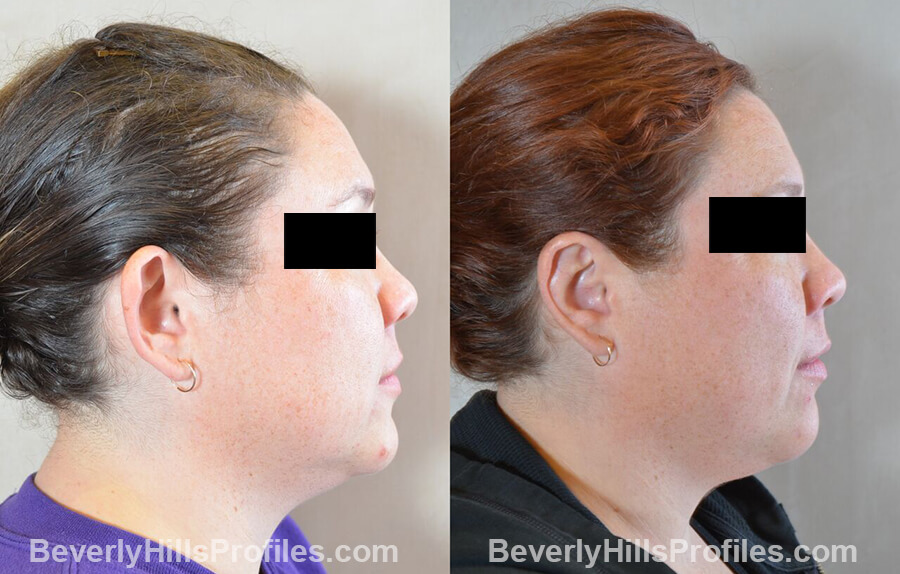 photos female patient before and after Otoplasty Procedures - right side view
