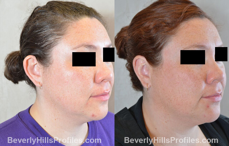 photos female patient before and after Otoplasty Procedures - oblique view