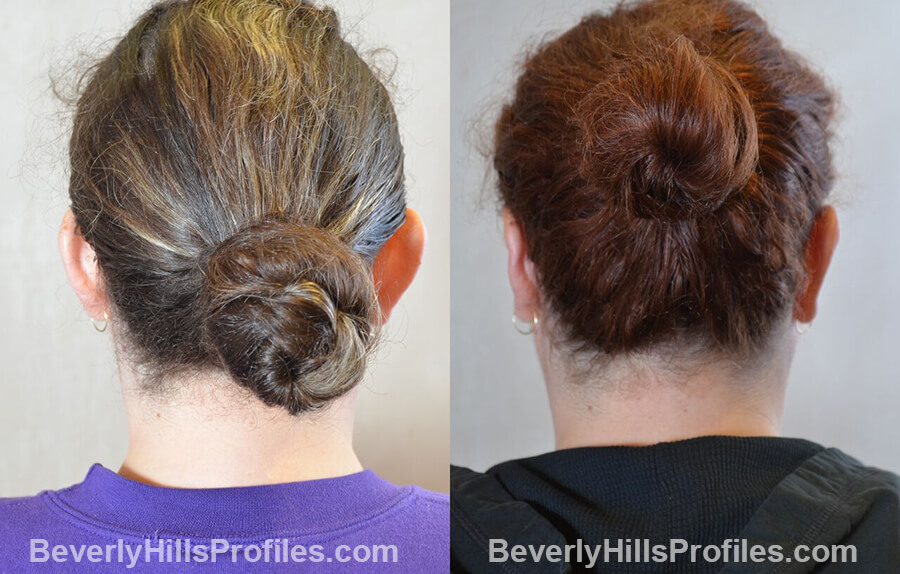 photos female patient before and after Otoplasty Procedures - back view