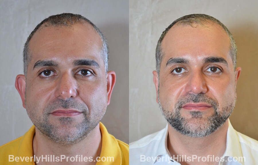 Male patient before and after Otoplasty - front view
