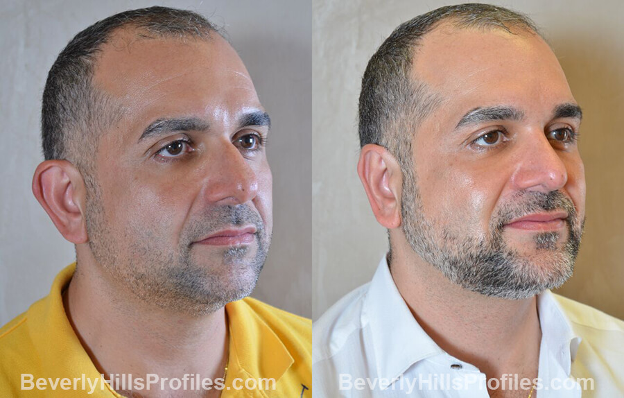Male before and after Otoplasty - oblique view