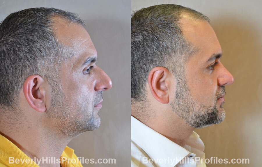 Male before and after Otoplasty, oblique view