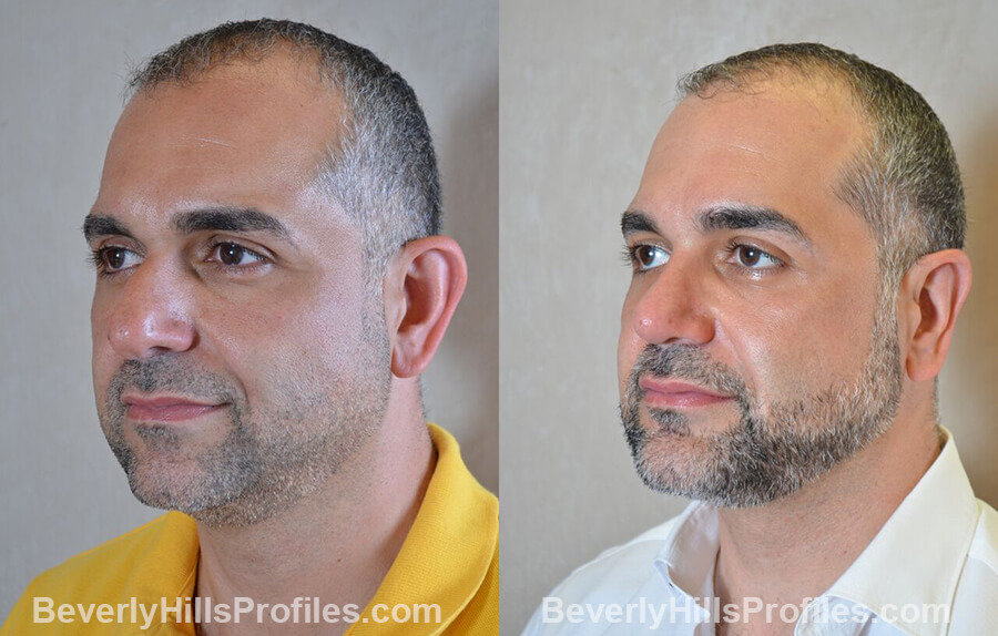 Male before and after Otoplasty - view