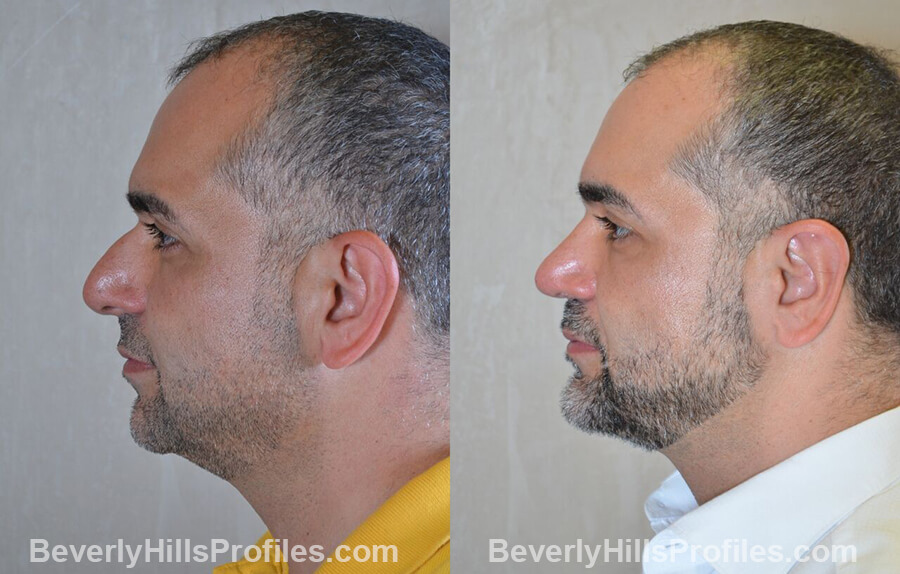 Male before and after Otoplasty - side view