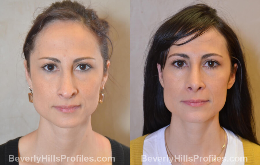 Photos Female before and after Revision Nose Job, front view