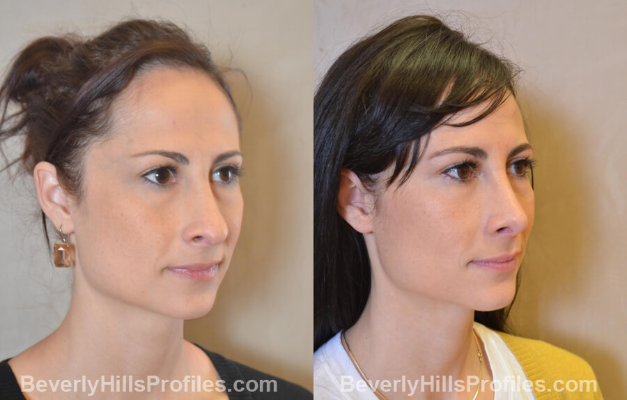 Photos Female before and after Revision Nose Job, oblique view