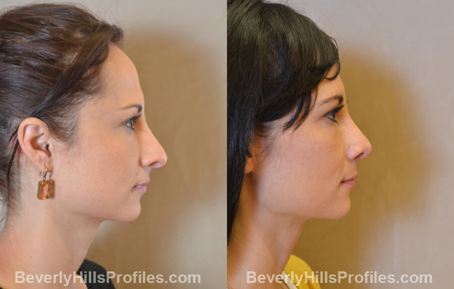 Photos Female before and after Revision Nose Job, side view