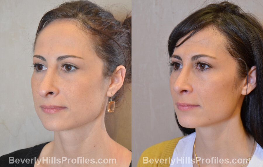 Photos Female before and after Revision Nose Job, left oblique view