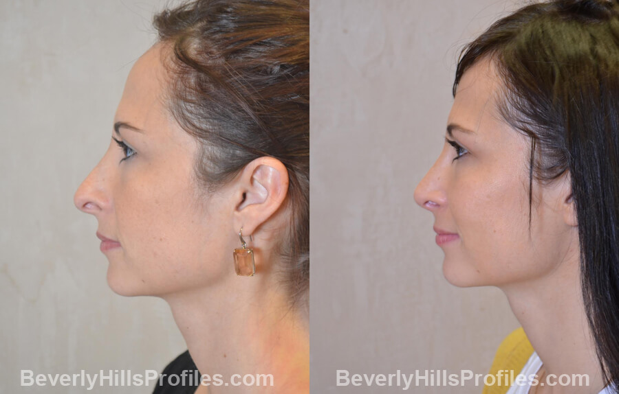 Photos Female before and after Revision Nose Job, left side view