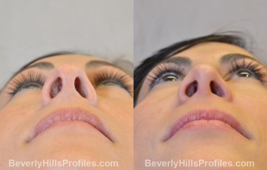 Photos Female before and after Revision Nose Job, underside view