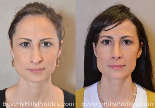 Female patient before and after Revision Nose Job - Images