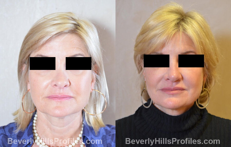 Photos Female patient before and after Revision Nose Job, front view
