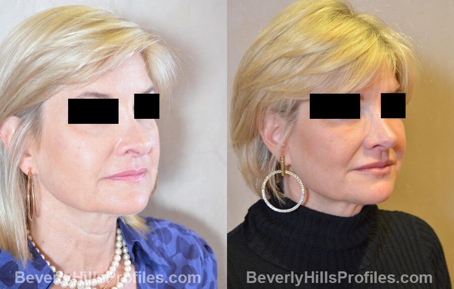 Photos Female patient before and after Revision Nose Job, oblique view