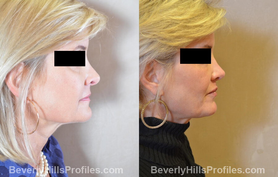 Photos Female patient before and after Revision Nose Job, side view