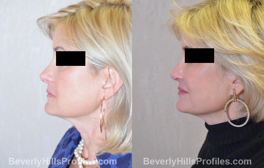 Photos Female patient before and after Revision Nose Job, left oblique view