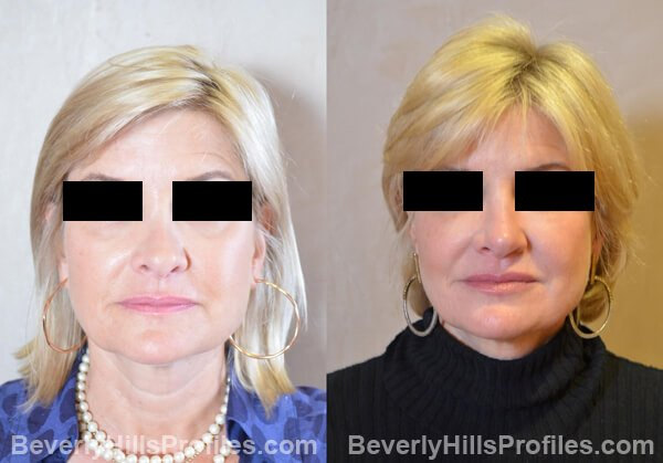 patient before and after Revision Rhinoplasty