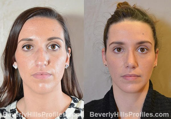 Ideal answer facial implants befoe after