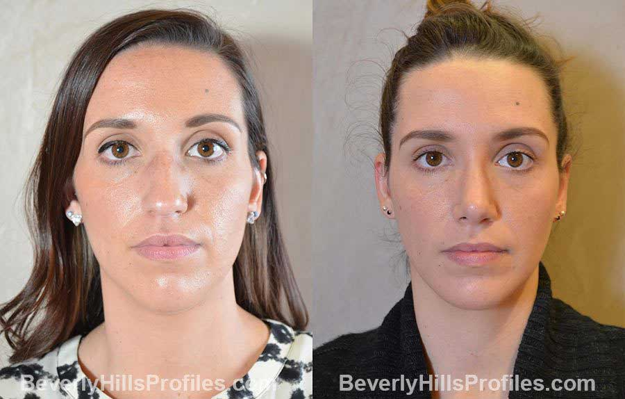 imgs Female patient before and after Nose Surgery Procedures - front view