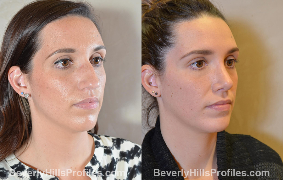 Female patient before and after Chin Implants - oblique view