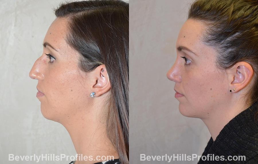 Female patient before and after Chin Implants - side view