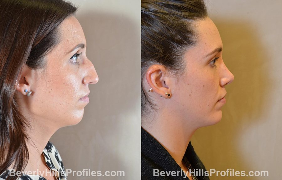 Female patient before and after Chin Implants - right side view