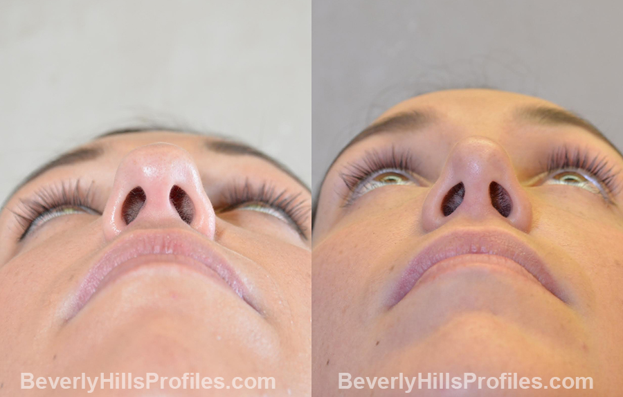 Female patient before and after Chin Implants