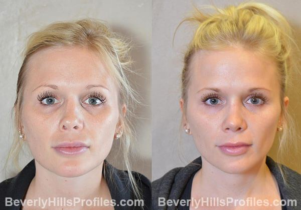 Female patient before and after Revision Nose Job