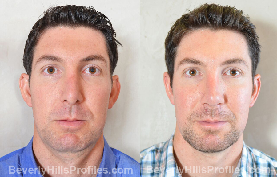 Photos Male before and after Revision Rhinoplasty - front view