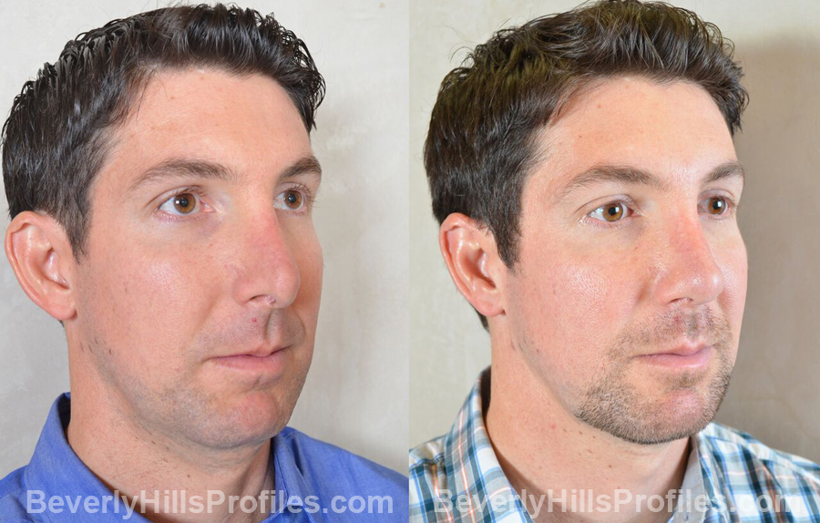 Photos Male before and after Revision Rhinoplasty - oblique view