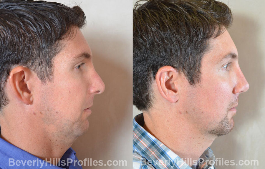 Photos Male before and after Revision Rhinoplasty - side view