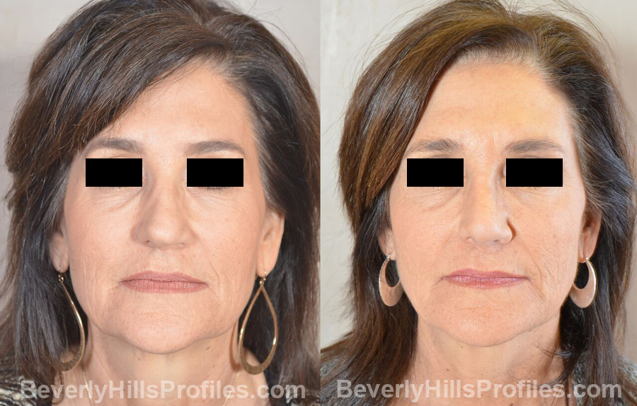 Female patient before and after Revision Nose Job - front view