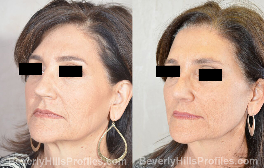 Female patient before and after Revision Nose Job - oblique view
