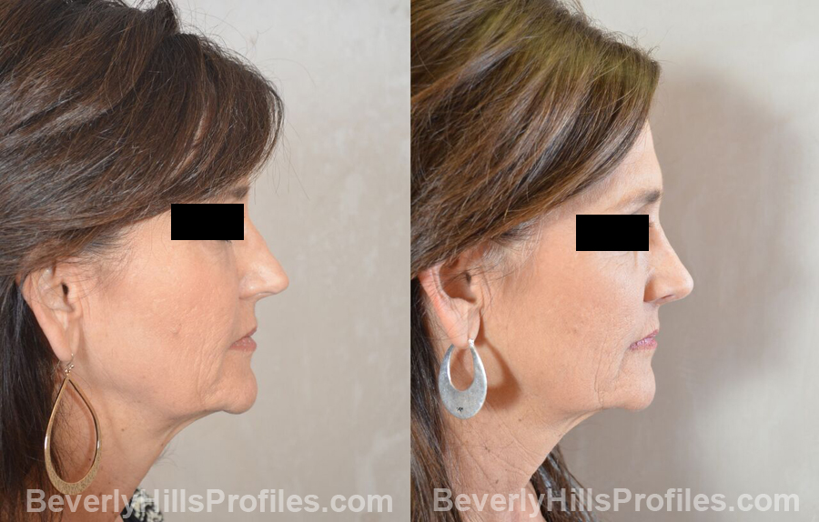 Female patient before and after Revision Nose Job - side view