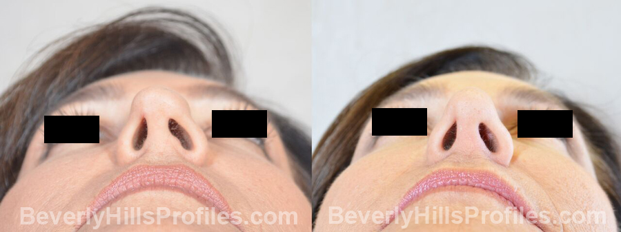 Female patient before and after Revision Nose Job - underside view