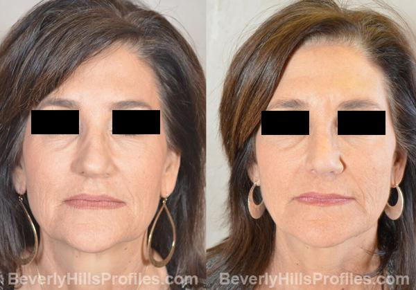 Images Female patient before and after Revision Rhinoplasty