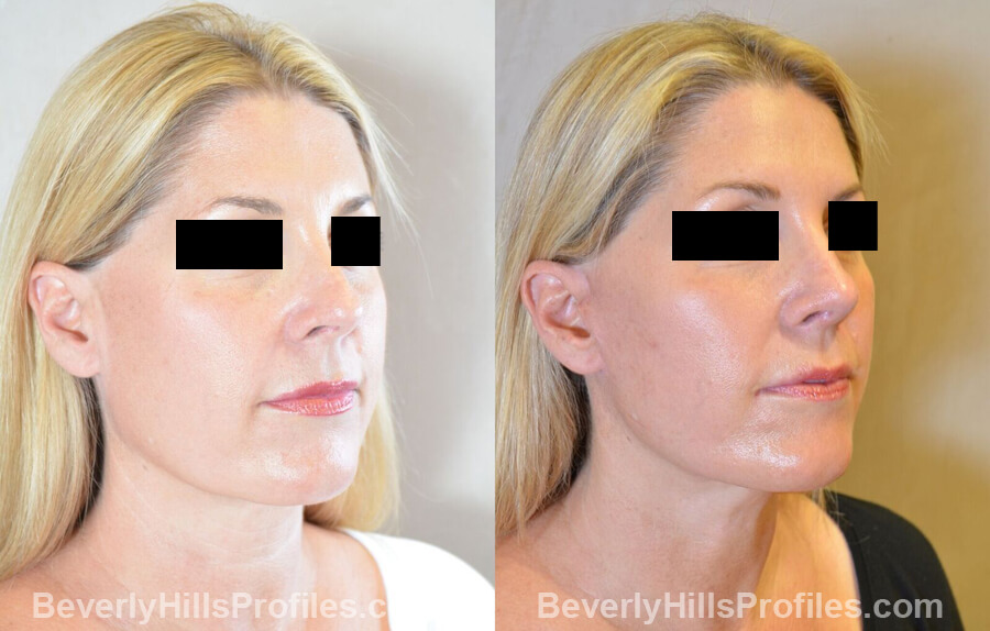 Images Female patient before and after Revision Nose Surgery oblique view