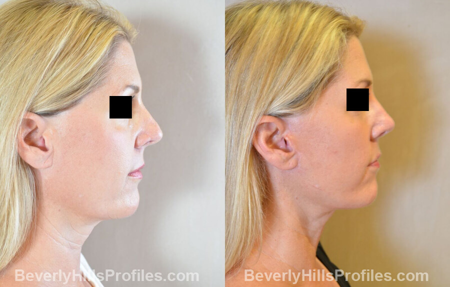 Images Female patient before and after Revision Nose Surgery side view