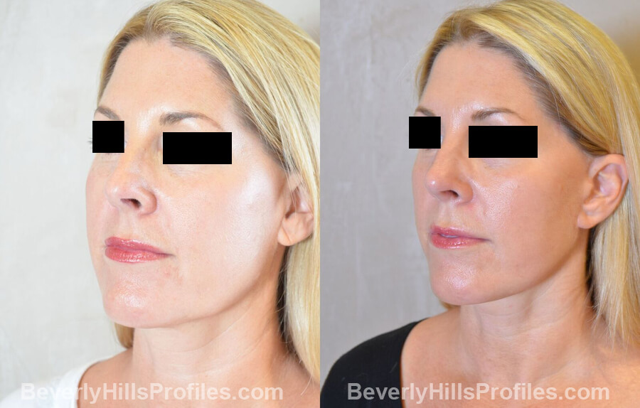 Images Female patient before and after Revision Nose Surgery left oblique view