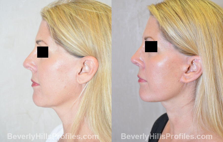 Images Female patient before and after Revision Nose Surgery left side view