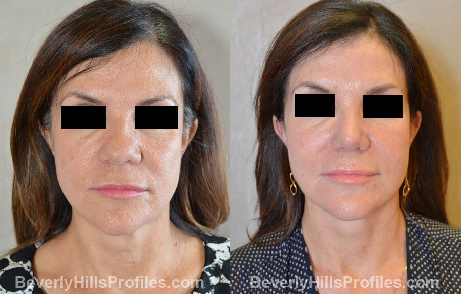 Photos Female before and after Revision Nose Surgery, front view