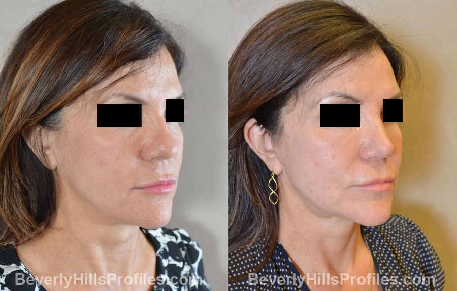 Photos Female before and after Revision Nose Surgery, oblique view