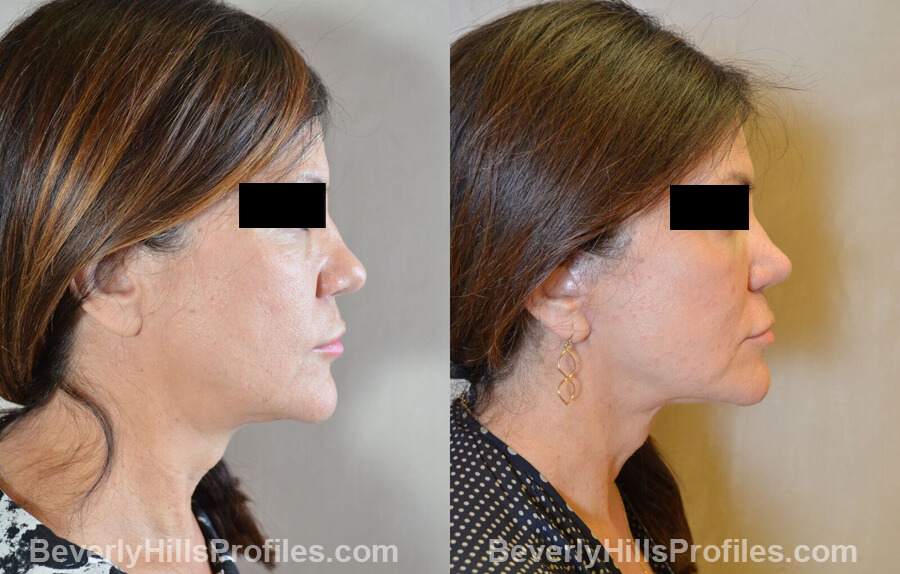 Photos Female before and after Revision Nose Surgery, side view