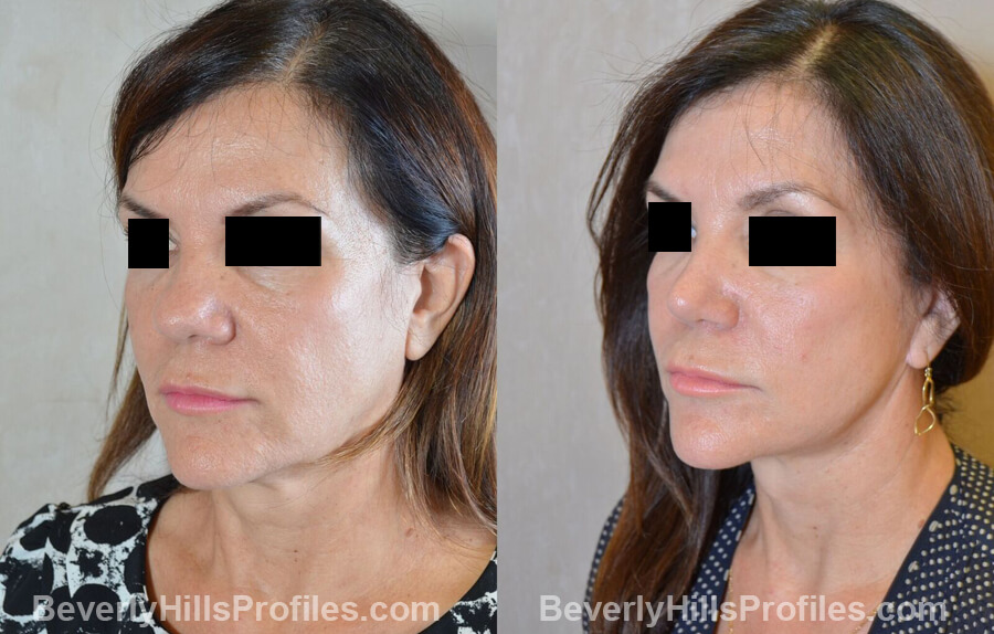 Photos Female before and after Revision Nose Surgery, left oblique view