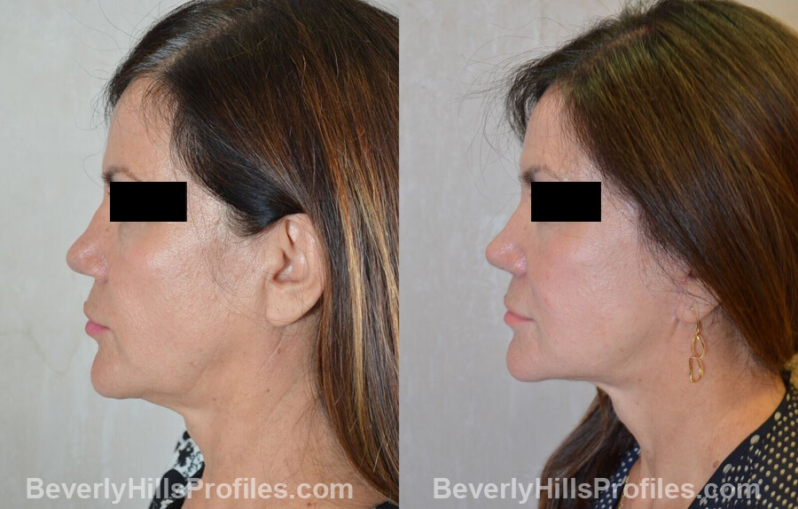 Photos Female before and after Revision Nose Surgery, left side view