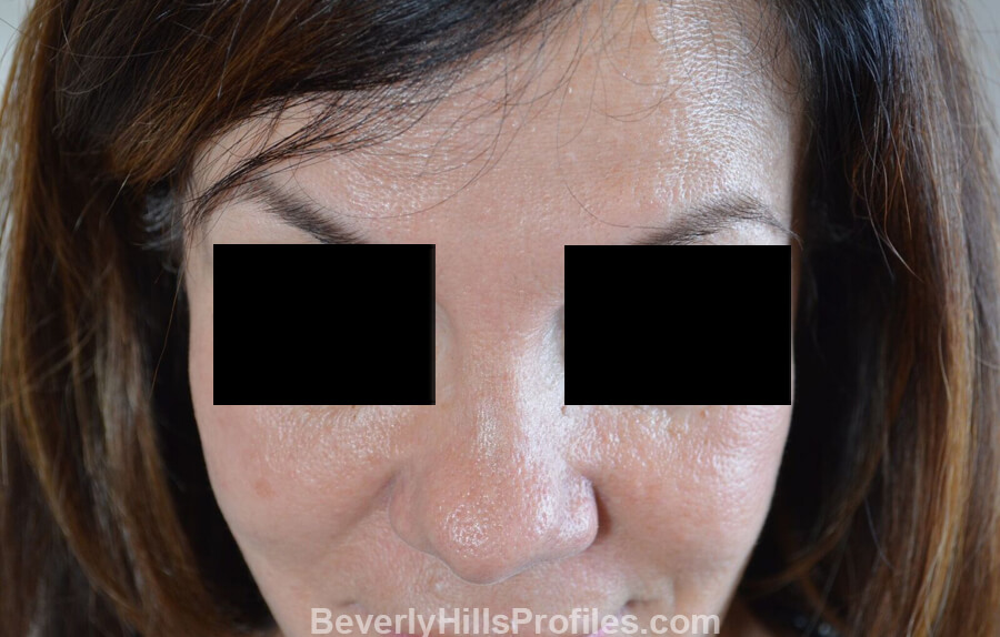 Photos Female before and after Revision Nose Surgery