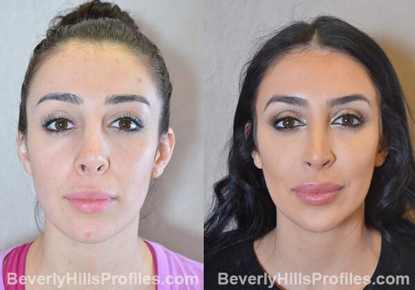 Female patient before and after Revision Rhinoplasty - Images