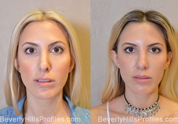 patient before and after Revision Rhinoplasty - Images