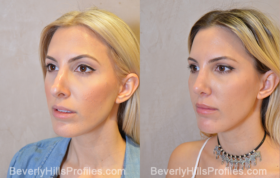 left oblique view - Female patient before and after Revision Rhinoplasty