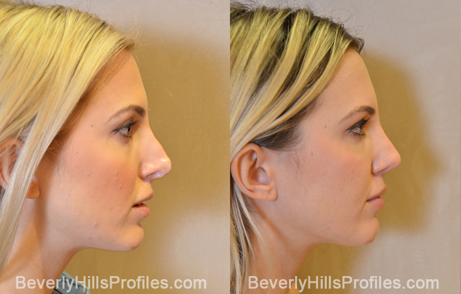 side view - Female patient before and after Revision Rhinoplasty